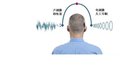双耳双模式聆听——让听障者听得更好