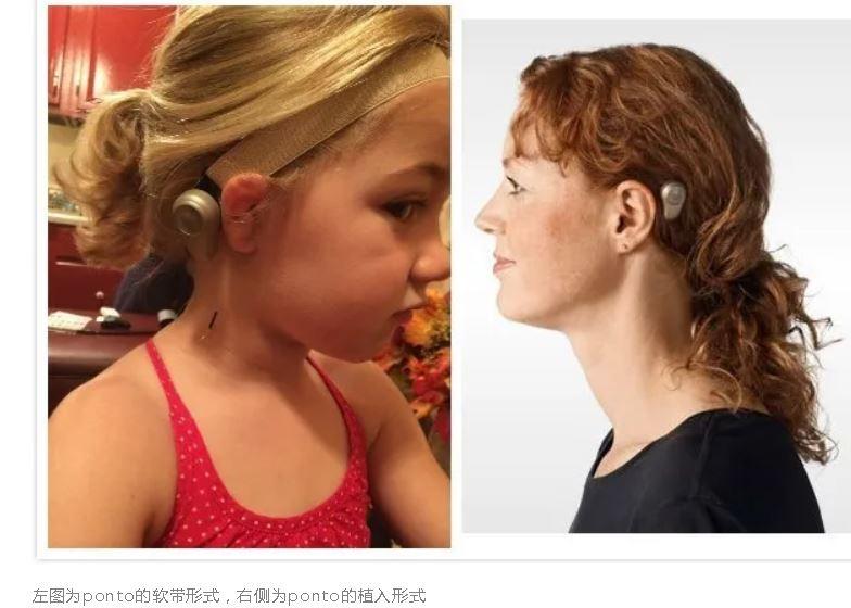 小耳畸形助听神器,奥迪康ponto3骨导听力系统!
